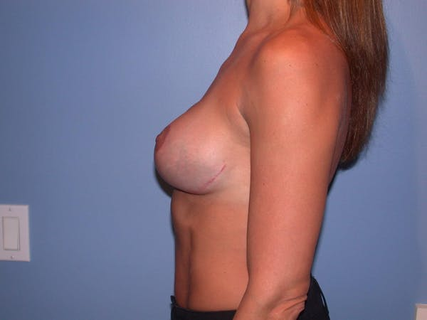 Breast Lift Gallery - Patient 6406821 - Image 4