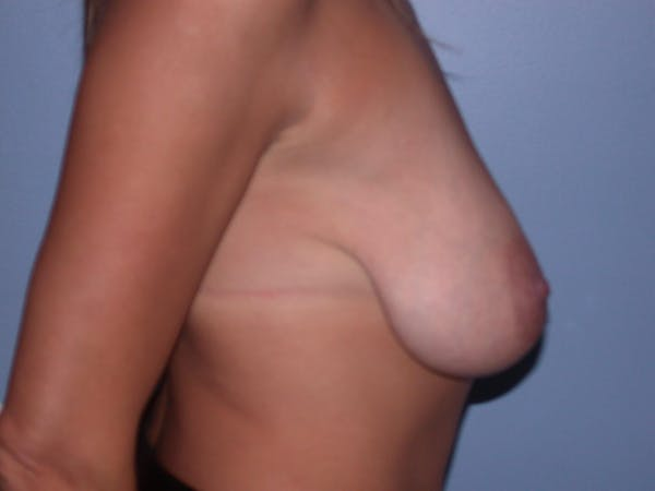 Breast Lift Gallery - Patient 6406821 - Image 5