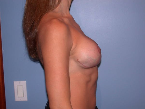 Breast Lift Gallery - Patient 6406821 - Image 6