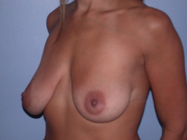 Breast Lift Gallery - Patient 6406821 - Image 7