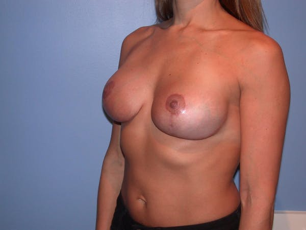 Breast Lift Gallery - Patient 6406821 - Image 8