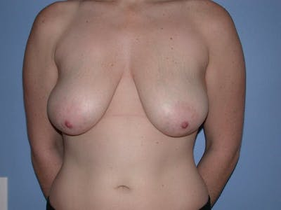 Breast Lift Gallery - Patient 6406949 - Image 1