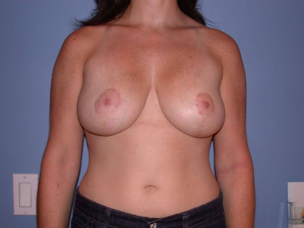 Breast Lift Gallery - Patient 6406949 - Image 2