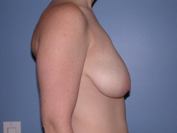 Breast Lift Gallery - Patient 6406949 - Image 3