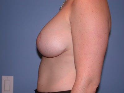 Breast Lift Gallery - Patient 6406949 - Image 6