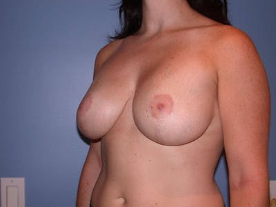 Breast Lift Gallery - Patient 6406949 - Image 8