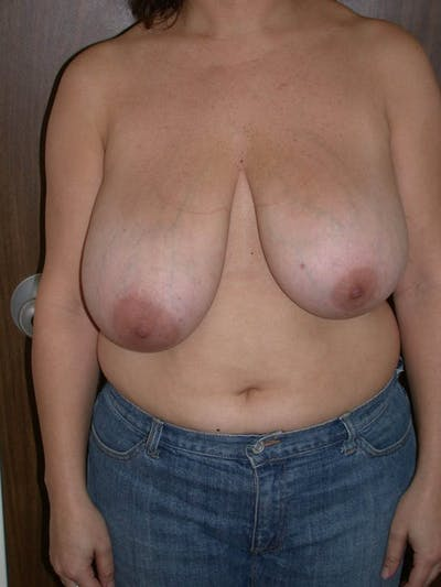 Breast Lift Gallery - Patient 6406950 - Image 1