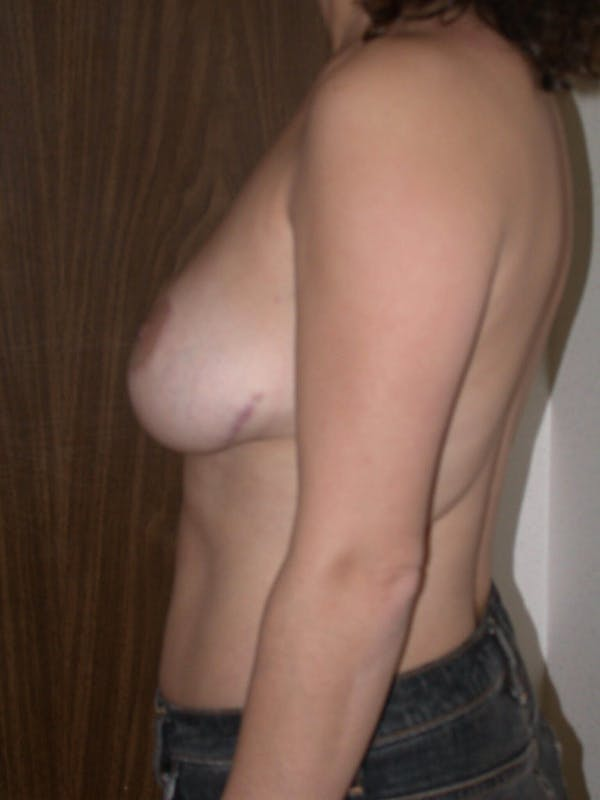 Breast Lift Gallery - Patient 6406950 - Image 6