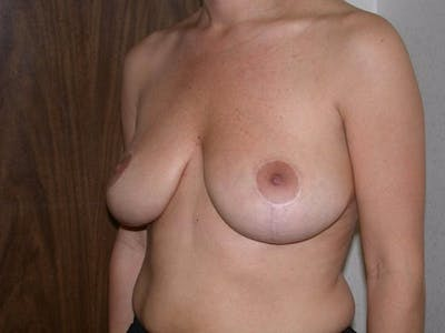 Breast Lift Gallery - Patient 6406950 - Image 8