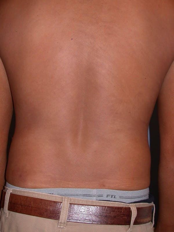 High Definition Liposuction Gallery - Patient 6407017 - Image 7