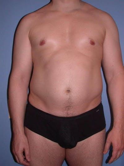 High Definition Liposuction Gallery - Patient 6407019 - Image 1