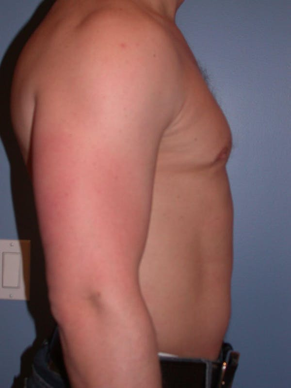 High Definition Liposuction Gallery - Patient 6407018 - Image 5