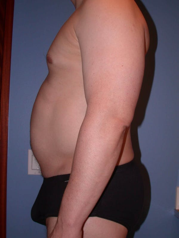 High Definition Liposuction Gallery - Patient 6407019 - Image 3