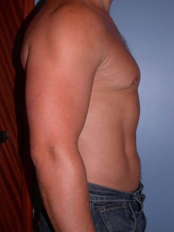 High Definition Liposuction Gallery - Patient 6407018 - Image 6