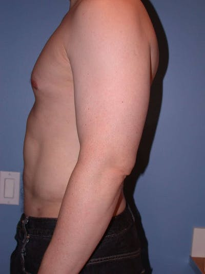 High Definition Liposuction Gallery - Patient 6407019 - Image 4