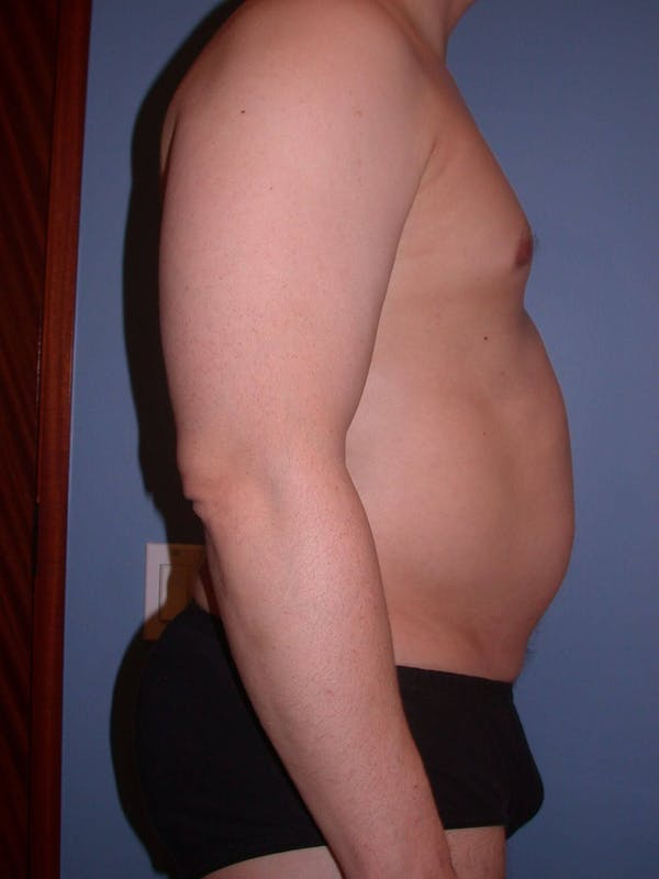 High Definition Liposuction Gallery - Patient 6407019 - Image 5