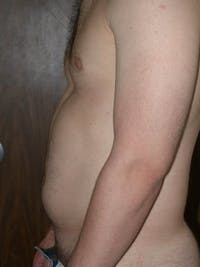 High Definition Liposuction Gallery - Patient 6407020 - Image 1