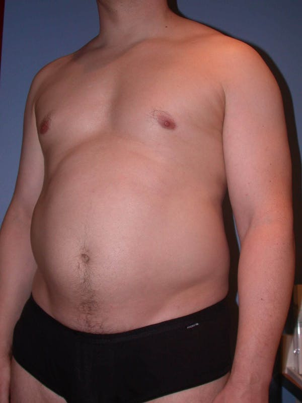 High Definition Liposuction Gallery - Patient 6407019 - Image 7