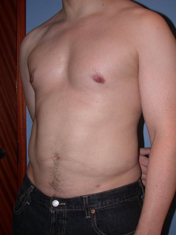 High Definition Liposuction Gallery - Patient 6407019 - Image 8