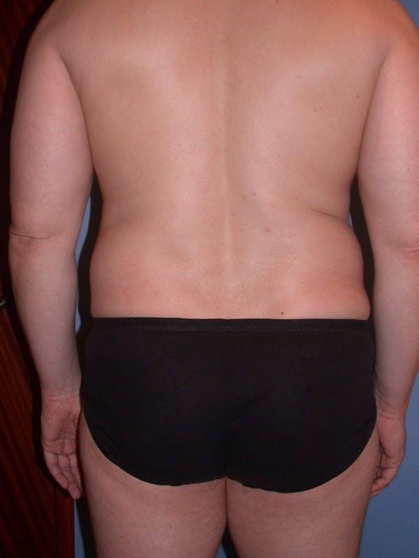 High Definition Liposuction Gallery - Patient 6407019 - Image 9