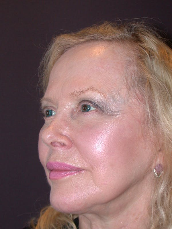 Facelift Gallery - Patient 7316658 - Image 3
