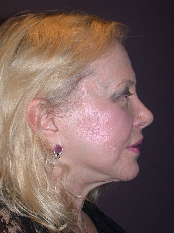 Facelift Gallery - Patient 7316658 - Image 5