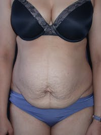 Tummy Tuck Gallery - Patient 7316694 - Image 1