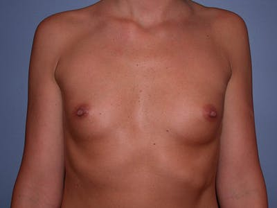 Breast Augmentation with Fat Gallery - Patient 7316696 - Image 1