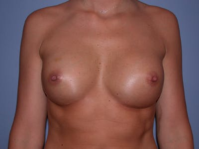 Breast Augmentation with Fat Gallery - Patient 7316696 - Image 2