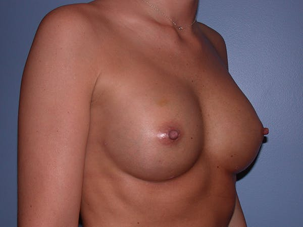 Breast Augmentation with Fat Gallery - Patient 7316696 - Image 4