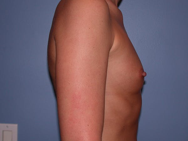 Breast Augmentation with Fat Gallery - Patient 7316696 - Image 5