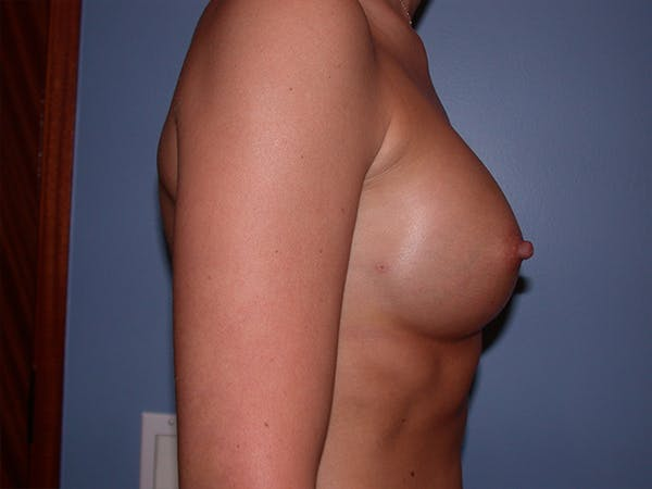 Breast Augmentation with Fat Gallery - Patient 7316696 - Image 6