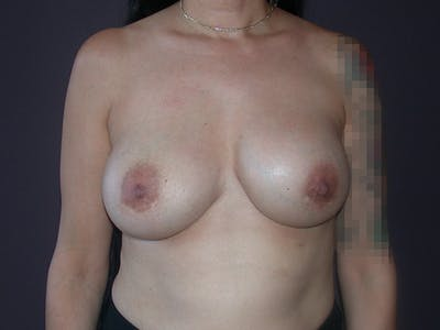 Corrective Breast Surgery Gallery - Patient 7420408 - Image 1
