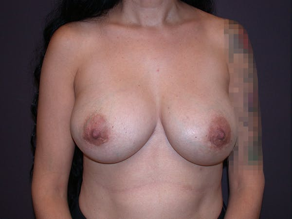 Corrective Breast Surgery Gallery - Patient 7420408 - Image 2