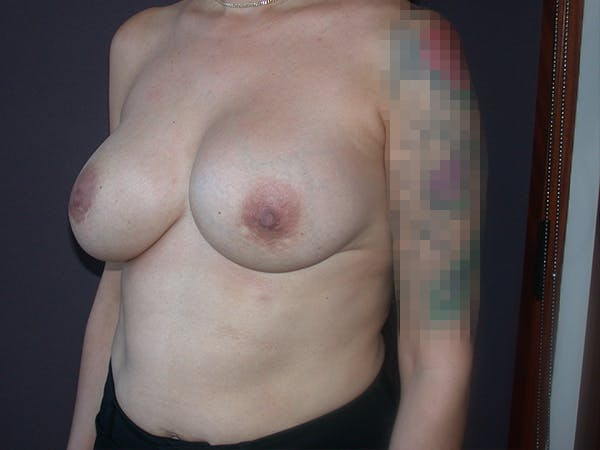 Corrective Breast Surgery Gallery - Patient 7420408 - Image 3