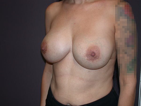 Corrective Breast Surgery Gallery - Patient 7420408 - Image 4