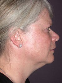 Neck Lift Gallery - Patient 12745336 - Image 1