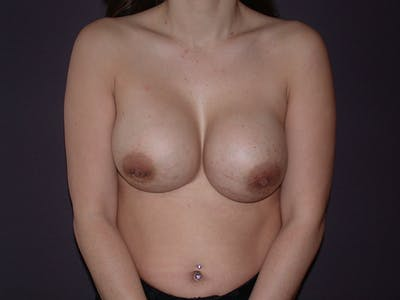 Corrective Breast Surgery Gallery - Patient 13215377 - Image 1