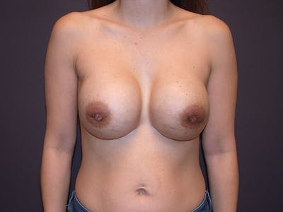 Corrective Breast Surgery Gallery - Patient 13215377 - Image 2