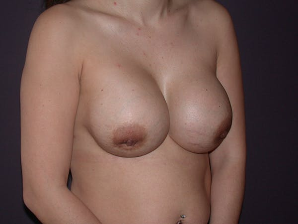 Corrective Breast Surgery Gallery - Patient 13215377 - Image 3