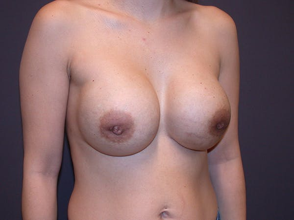 Corrective Breast Surgery Gallery - Patient 13215377 - Image 4