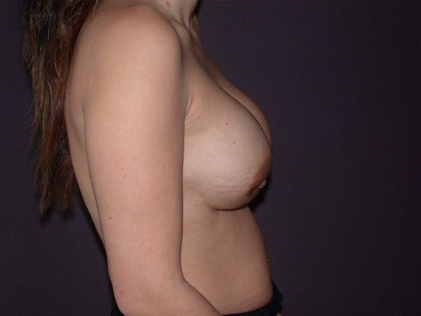 Corrective Breast Surgery Gallery - Patient 13215377 - Image 5