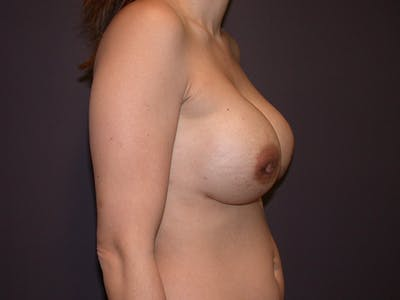Corrective Breast Surgery Gallery - Patient 13215377 - Image 6