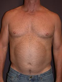 High Definition Liposuction Gallery - Patient 14779149 - Image 1