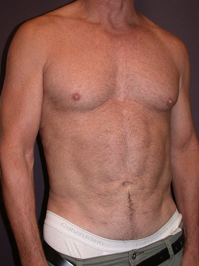 High Definition Liposuction Gallery - Patient 14779149 - Image 4