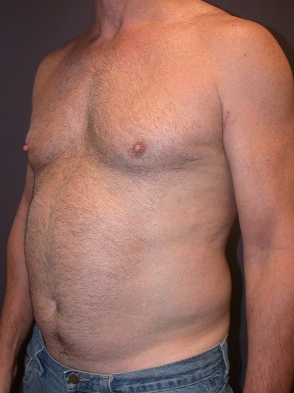 High Definition Liposuction Gallery - Patient 14779149 - Image 5