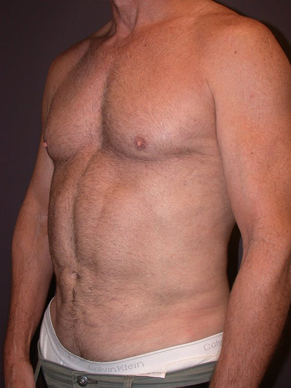 High Definition Liposuction Gallery - Patient 14779149 - Image 6