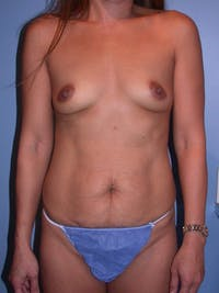 High Definition Liposuction Gallery - Patient 15929203 - Image 1