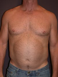 Liposuction Gallery - Patient 25852500 - Image 1