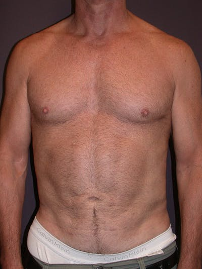 Liposuction Gallery - Patient 25852500 - Image 2